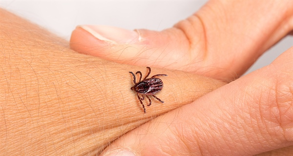 Preventing and Treating Tick Bites